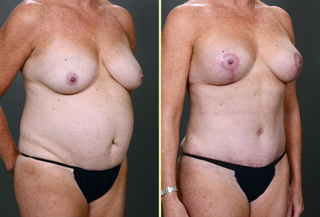 Tummy Tuck & Breast Surgery Patient 5