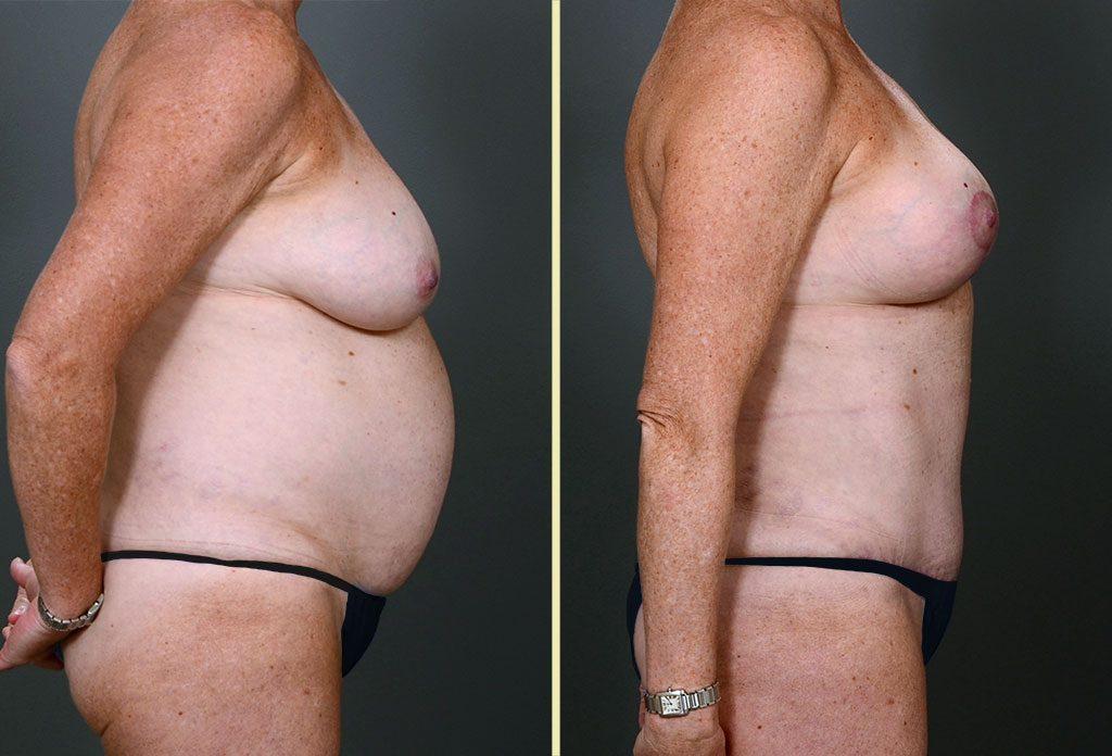 combo-tummy-tuck-mastopexy-01-c-artisanplasticsurgery