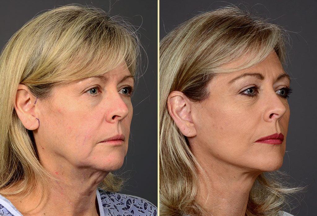 facelift-13b-artisanplasticsurgery
