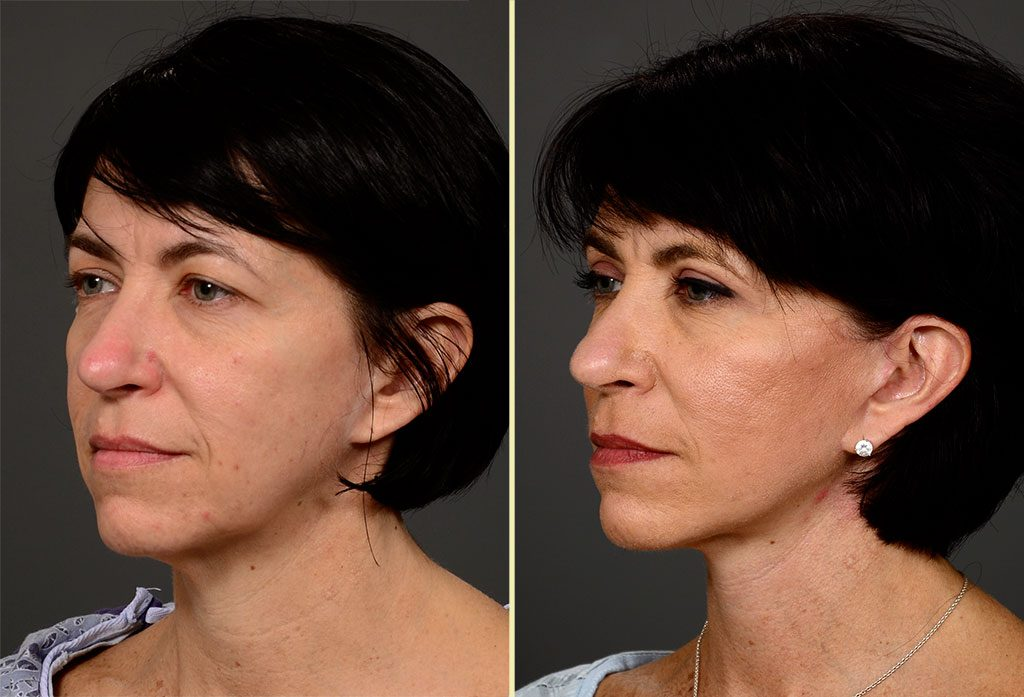 facelift-14b-artisanplasticsurgery