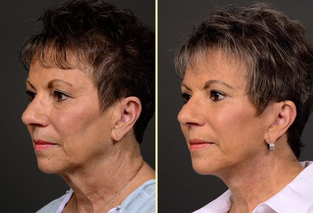 facelift-15b-artisanplasticsurgery