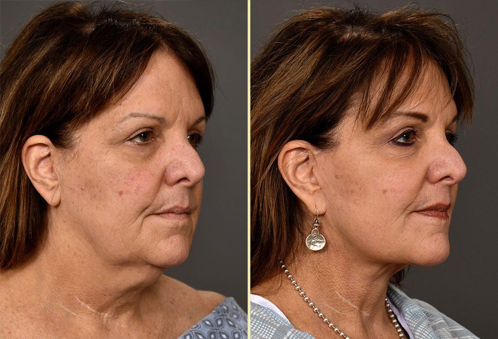 Facelift Patient 16