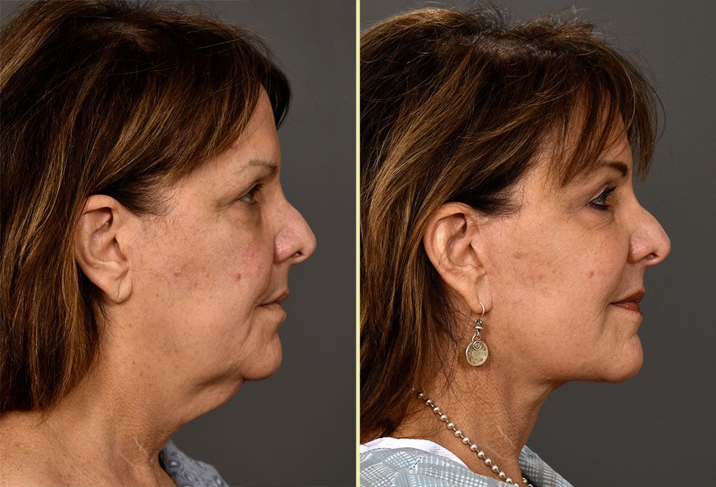 facelift-16c-artisanplasticsurgery