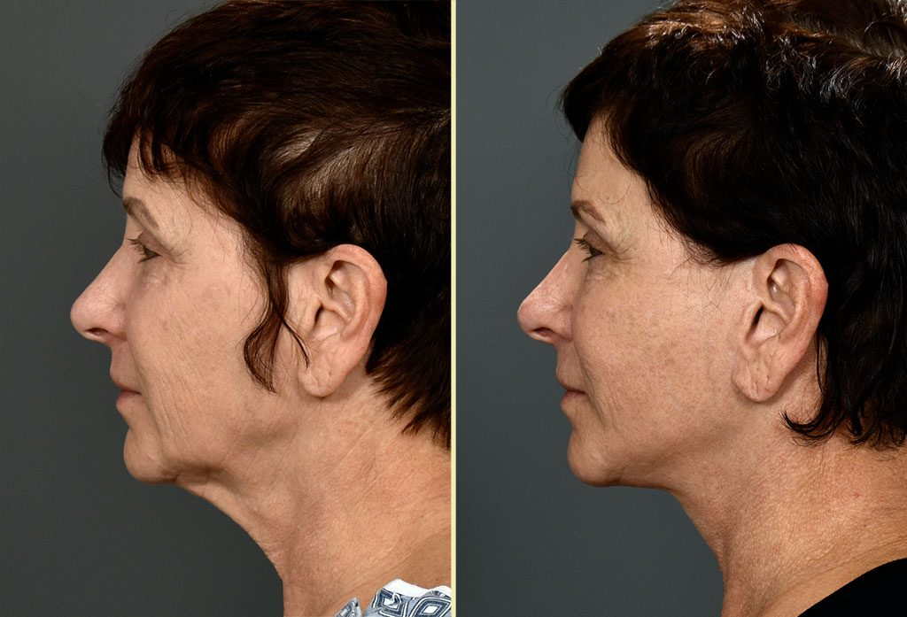 facelift-17c-artisanplasticsurgery