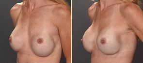 revision-breast-augmentation-01b-artisanplasticsurgery
