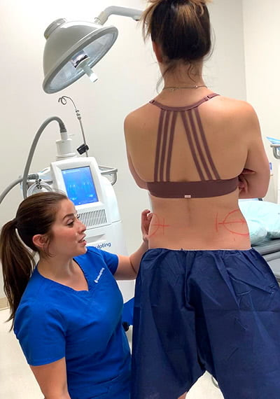 CoolSculpting Treatment Patient in Atlanta