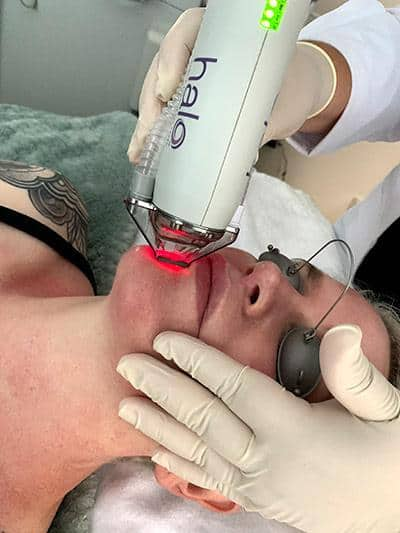 close up of patient's face with halo device applying red laser on face